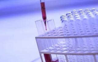 TROD ou Test de dépistage rapide du VIH